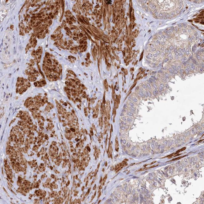 Immunohistochemistry (Formalin/PFA-fixed paraffin-embedded sections) - Anti-PSTK antibody (ab272622)