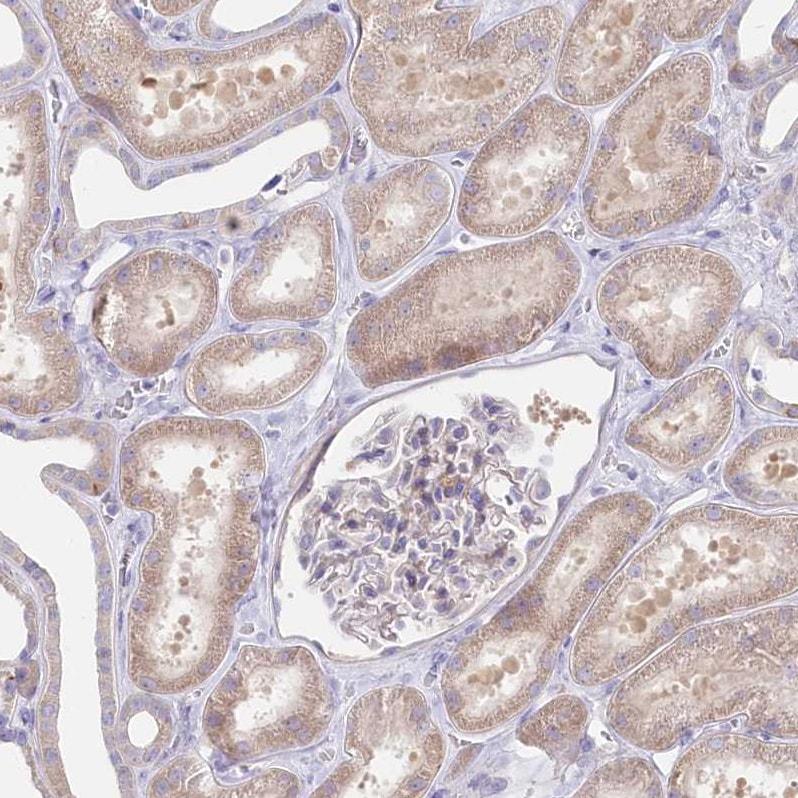 Immunohistochemistry (Formalin/PFA-fixed paraffin-embedded sections) - Anti-POGLUT1 antibody (ab272623)
