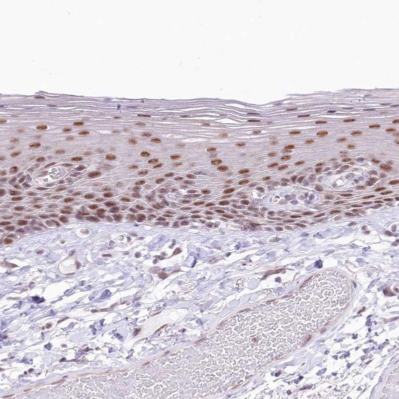 Immunohistochemistry (Formalin/PFA-fixed paraffin-embedded sections) - Anti-NSUN2/SAKI antibody (ab272624)