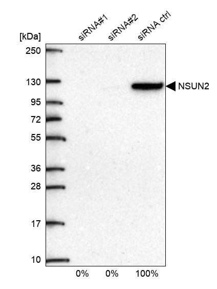 Western blot - Anti-NSUN2/SAKI antibody (ab272624)