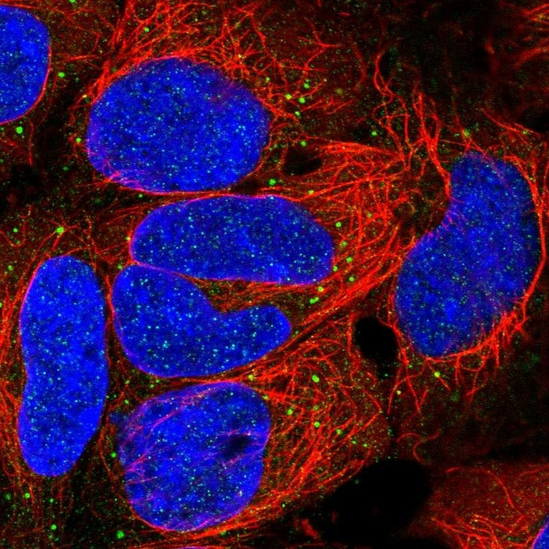 Immunocytochemistry/ Immunofluorescence - Anti-EDA antibody (ab272625)