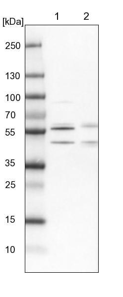 Western blot - Anti-WW domain binding protein 4 antibody (ab272629)