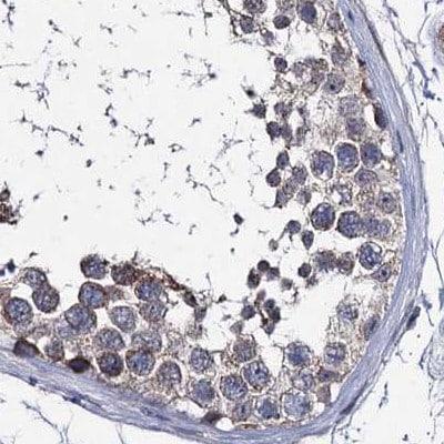 Immunohistochemistry (Formalin/PFA-fixed paraffin-embedded sections) - Anti-CLPB antibody (ab272630)