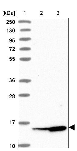 Western blot - Anti-SNRPD1 antibody (ab272632)
