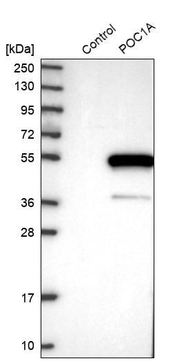 Western blot - Anti-POC1A antibody (ab272633)