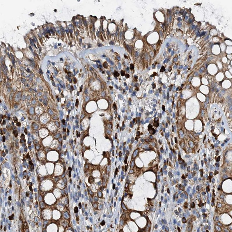 Immunohistochemistry (Formalin/PFA-fixed paraffin-embedded sections) - Anti-POC1A antibody (ab272633)