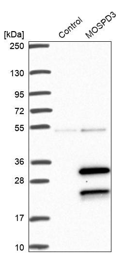Western blot - Anti-MOSPD3 antibody (ab272635)