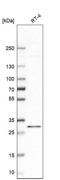 Western blot - Anti-Rab15 antibody (ab272636)