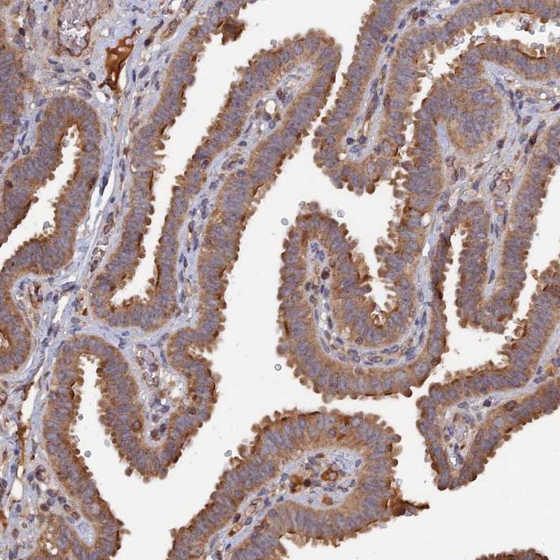 Immunohistochemistry (Formalin/PFA-fixed paraffin-embedded sections) - Anti-Rab15 antibody (ab272636)