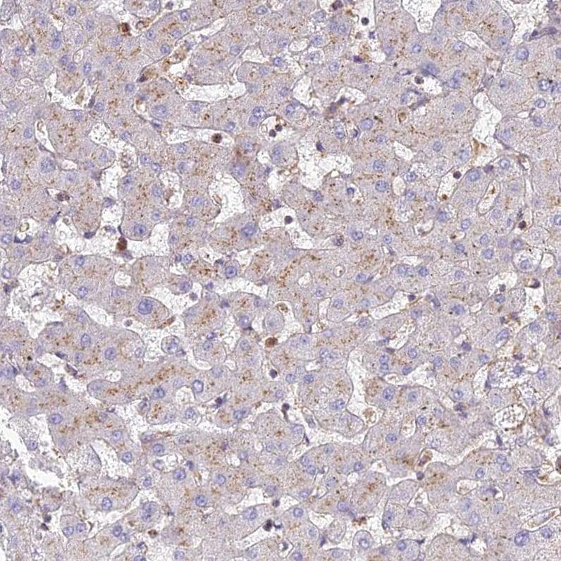 Immunohistochemistry (Formalin/PFA-fixed paraffin-embedded sections) - Anti-CHMP4B / CHMP4C antibody (ab272638)