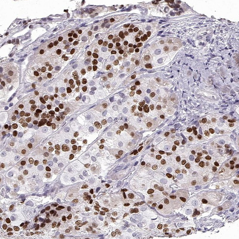Immunohistochemistry (Formalin/PFA-fixed paraffin-embedded sections) - Anti-Pit1 antibody (ab272639)