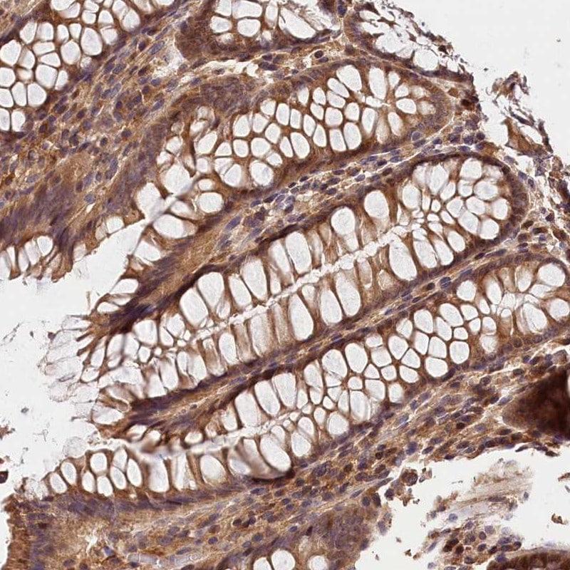 Immunohistochemistry (Formalin/PFA-fixed paraffin-embedded sections) - Anti-Kaptin antibody (ab272641)