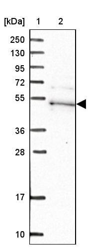 Western blot - Anti-Kaptin antibody (ab272641)