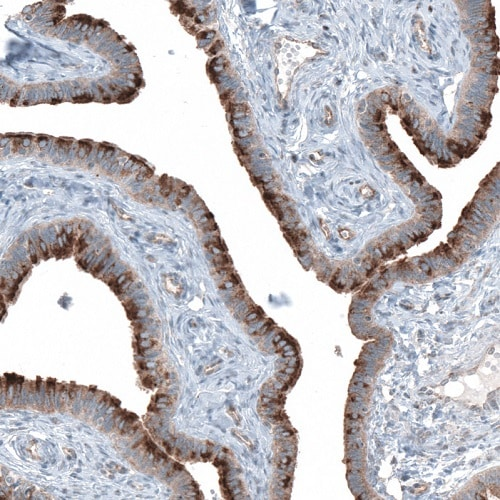Immunohistochemistry (Formalin/PFA-fixed paraffin-embedded sections) - Anti-TMEM2 antibody (ab272644)