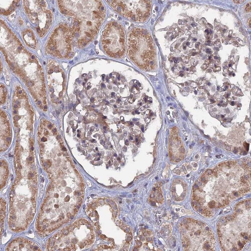 Immunohistochemistry (Formalin/PFA-fixed paraffin-embedded sections) - Anti-CNTD2 antibody (ab272647)