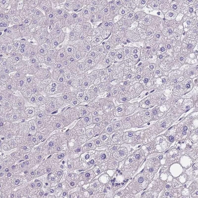 Immunohistochemistry (Formalin/PFA-fixed paraffin-embedded sections) - Anti-FAM83F antibody (ab272651)