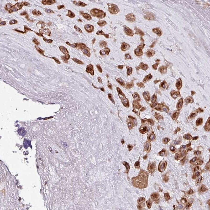 Immunohistochemistry (Formalin/PFA-fixed paraffin-embedded sections) - Anti-APOLD1 antibody (ab272654)