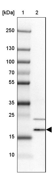 Western blot - Anti-VKORC1L1 antibody (ab272657)