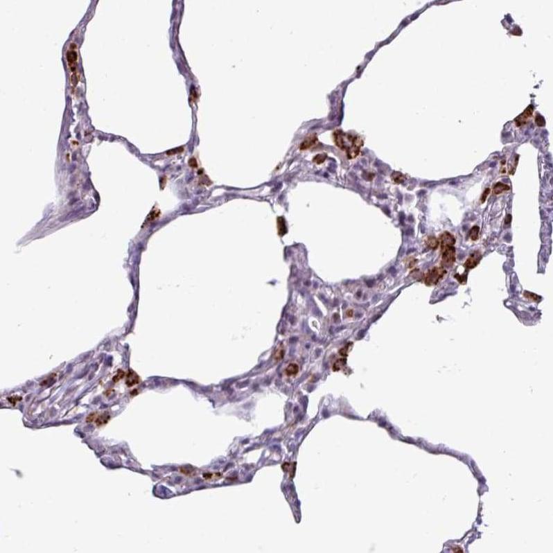 Immunohistochemistry (Formalin/PFA-fixed paraffin-embedded sections) - Anti-DEGA antibody (ab272658)