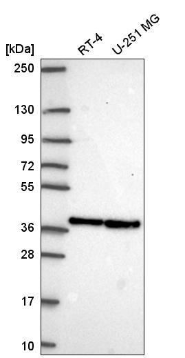 Western blot - Anti-Arglu1 antibody (ab272660)