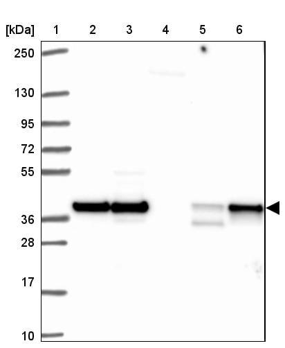 Western blot - Anti-HNRPDL antibody (ab272661)