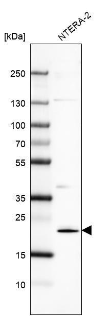Western blot - Anti-Cysteine Dioxygenase CDO1 antibody (ab272664)