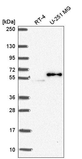 Western blot - Anti-PJA2 antibody (ab272665)
