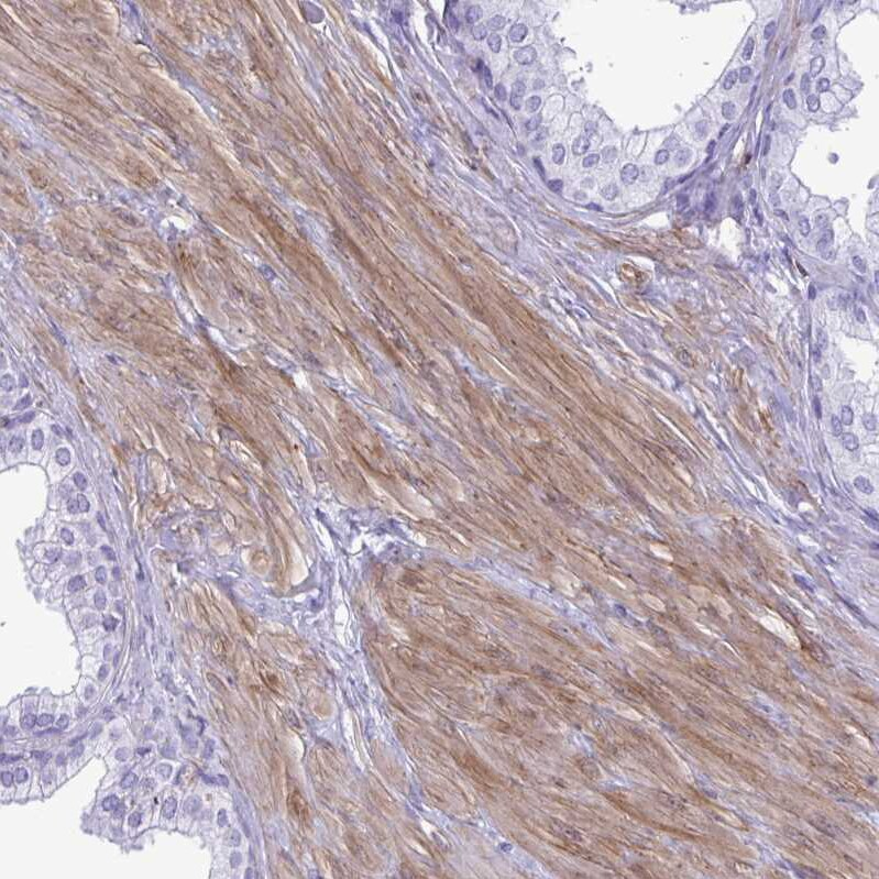 Immunohistochemistry (Formalin/PFA-fixed paraffin-embedded sections) - Anti-PINCH-2 antibody (ab272666)