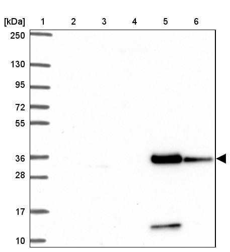 Western blot - Anti-PINCH-2 antibody (ab272666)
