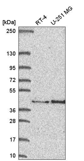 Western blot - Anti-FAM107B antibody (ab272667)