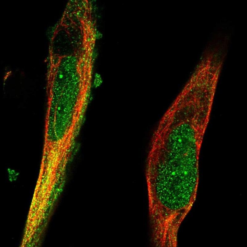 Immunocytochemistry/ Immunofluorescence - Anti-TRIM36 antibody (ab272672)