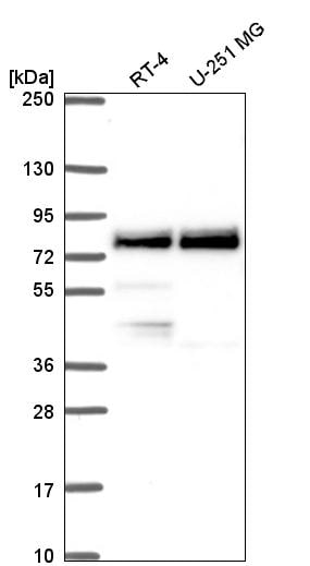 Western blot - Anti-TRIM36 antibody (ab272672)