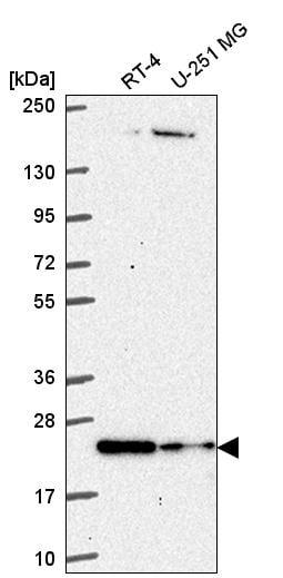 Western blot - Anti-HES4 antibody (ab272675)