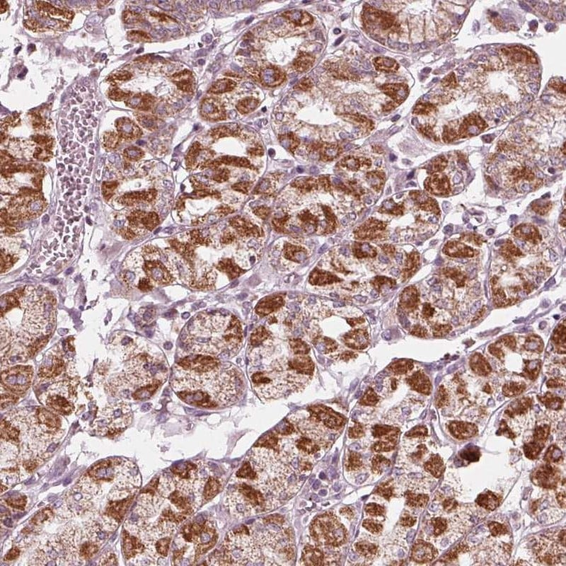 Immunohistochemistry (Formalin/PFA-fixed paraffin-embedded sections) - Anti-CLN6 antibody (ab272678)