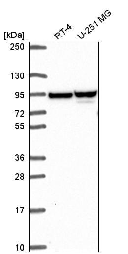 Western blot - Anti-ZNF341 antibody (ab272679)