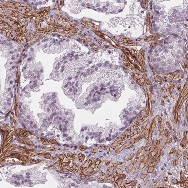 Immunohistochemistry (Formalin/PFA-fixed paraffin-embedded sections) - Anti-HAS1 antibody (ab272680)