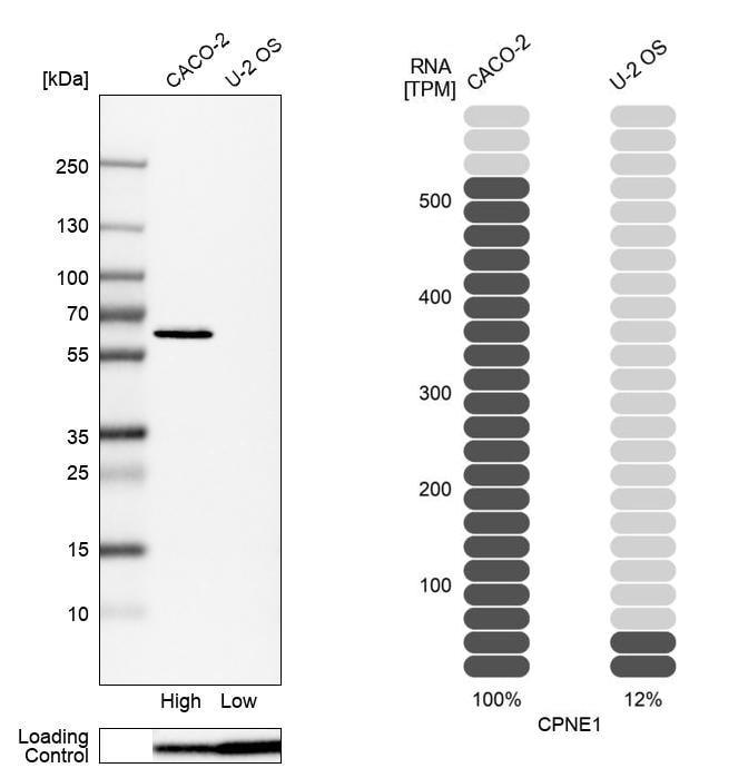 Western blot - Anti-CPNE1 antibody (ab272682)