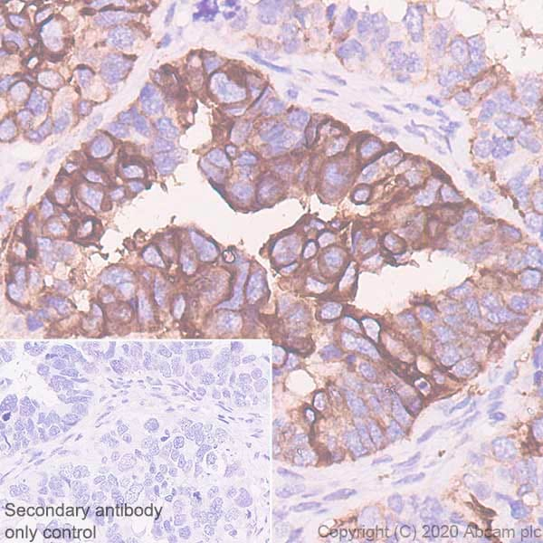 Immunohistochemistry (Formalin/PFA-fixed paraffin-embedded sections) - Anti-B7H4 antibody [EPR23665-20] - BSA and Azide free (ab272707)