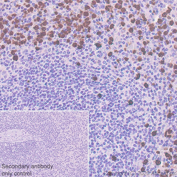 Immunohistochemistry (Formalin/PFA-fixed paraffin-embedded sections) - Anti-S100A12/CGRP antibody [EPR23677-111] (ab272713)