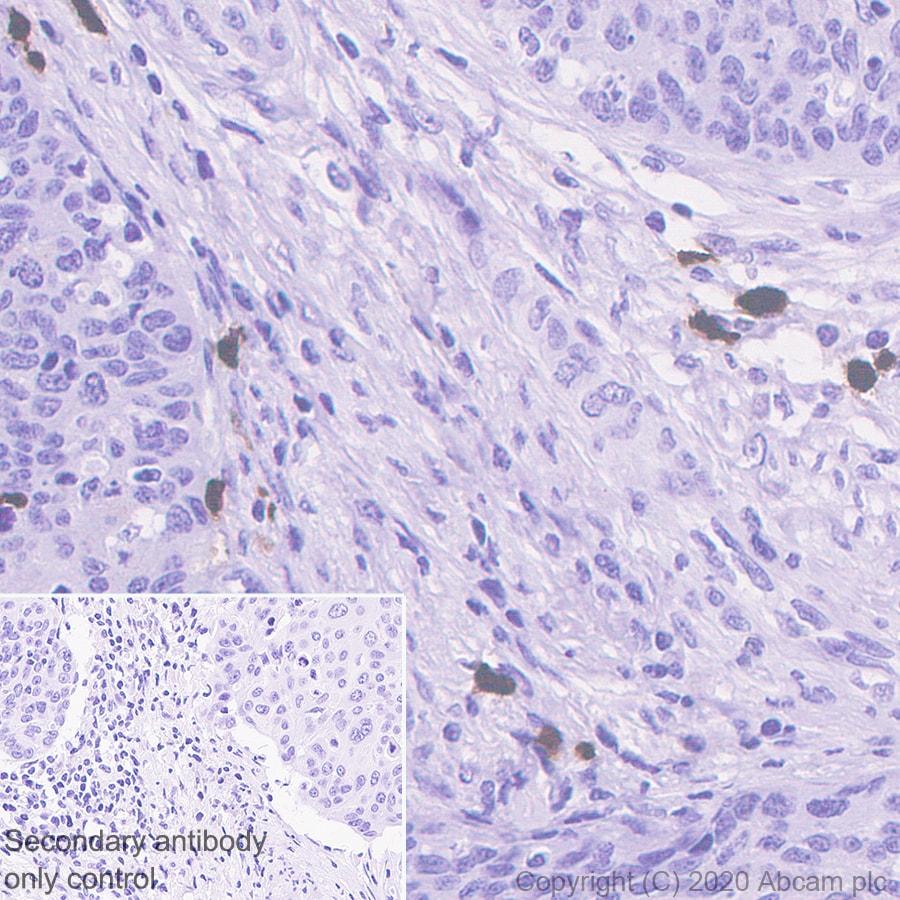 Immunohistochemistry (Formalin/PFA-fixed paraffin-embedded sections) - Anti-S100A12/CGRP antibody [EPR23677-111] (ab272713)