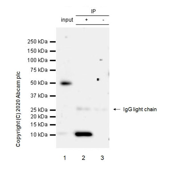 Immunoprecipitation - Anti-S100A12/CGRP antibody [EPR23677-111] (ab272713)