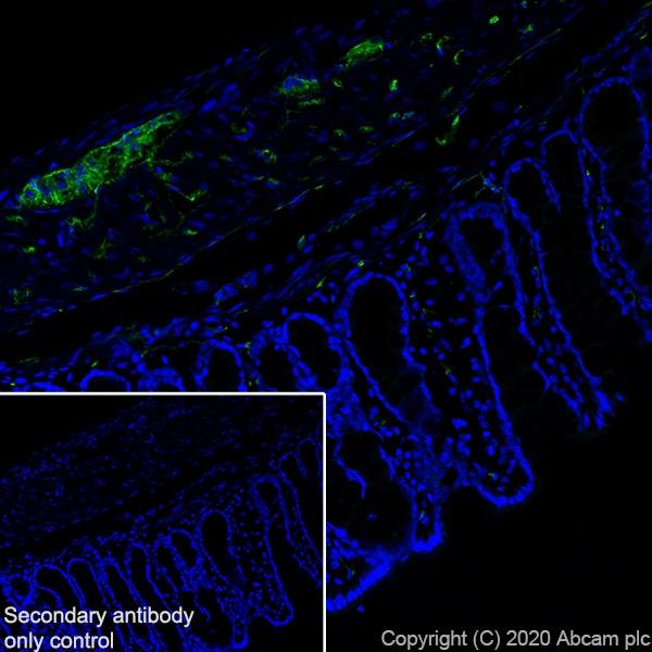 Immunohistochemistry (Frozen sections) - Anti-L1CAM antibody [EPR23338-106] (ab272733)