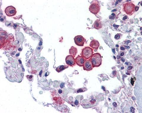 Immunohistochemistry (Formalin/PFA-fixed paraffin-embedded sections) - Anti-TRPV2 antibody (ab272862)