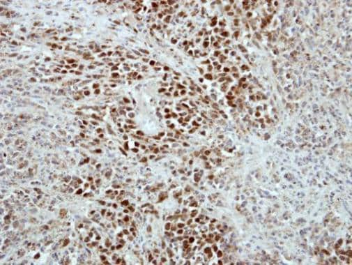 Immunohistochemistry (Formalin/PFA-fixed paraffin-embedded sections) - Anti-RAP1 antibody (ab272863)