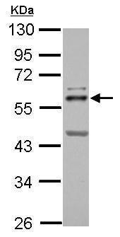 Western blot - Anti-ETS2 antibody (ab272866)