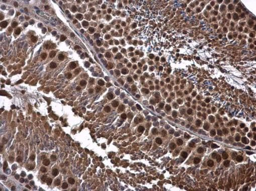 Immunohistochemistry (Formalin/PFA-fixed paraffin-embedded sections) - Anti-Cdk8 antibody (ab272879)