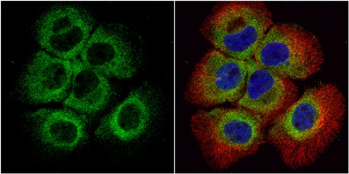 Immunocytochemistry/ Immunofluorescence - Anti-Bid antibody (ab272880)
