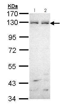 Western blot - Anti-Eph receptor B6 antibody (ab272882)