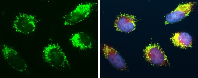 Immunocytochemistry/ Immunofluorescence - Anti-mtTFA antibody (ab272885)