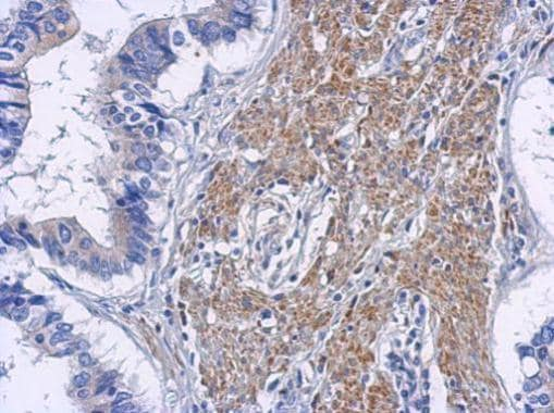 Immunohistochemistry (Formalin/PFA-fixed paraffin-embedded sections) - Anti-RIP2 antibody (ab272886)